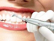 Ультразвуковая имплантация зубов отзывы