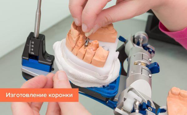 Изготовление постоянного протеза