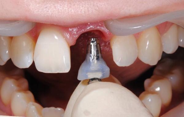 Подготовка к установке импланта сразу после удаления зуба