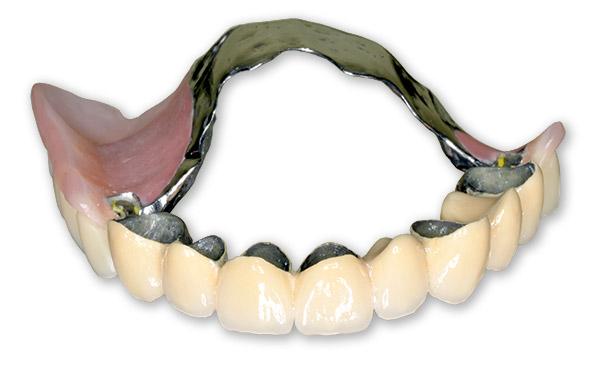 Зубной протез без неба при частичном отсутствии