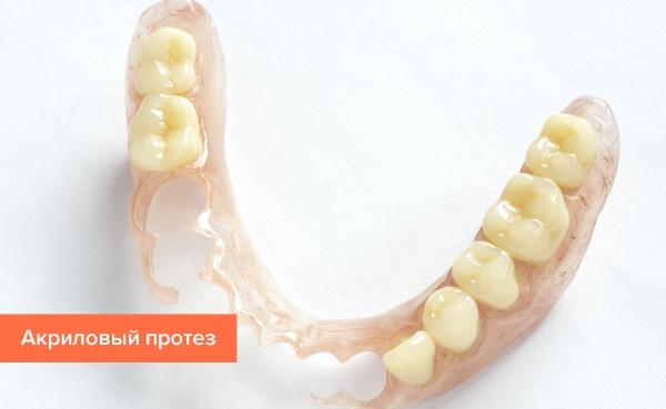 Зубные протезы при частичном отсутствии зубов