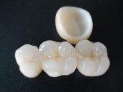 Безметалловые коронки на передние зубы