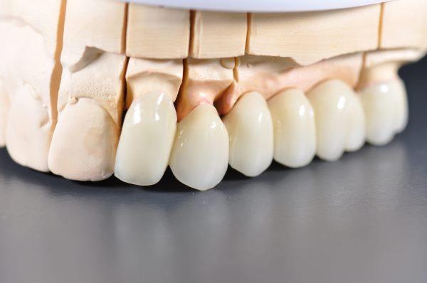 Рекомендации по уходу за безметалловой коронкой на зуб