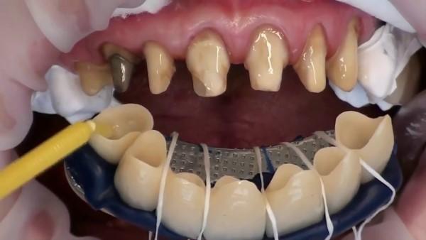 Безметалловые коронки на передние зубы фото