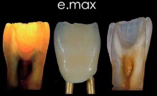Безметалловая коронка на зуб отзывы