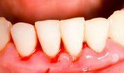 Кровь из под коронки зуба причины
