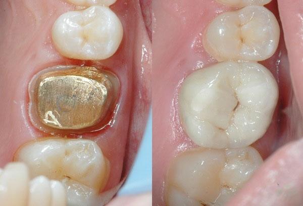 Какой протез лучше при отсутствии жевательных зубов