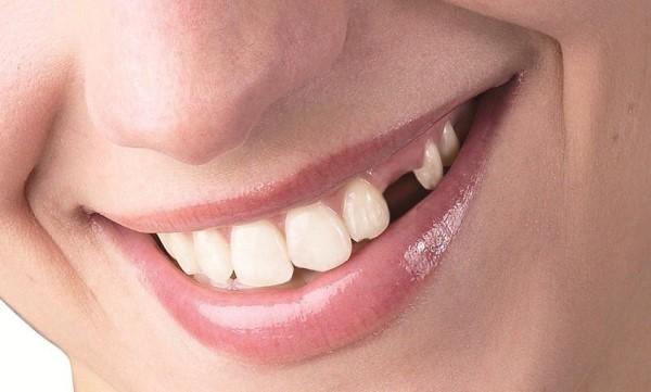 Особенности несъемных зубных протезов при частичном отсутствии зубов