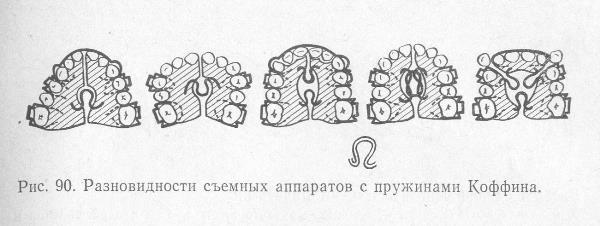 Конструкции с пружиной Коффина