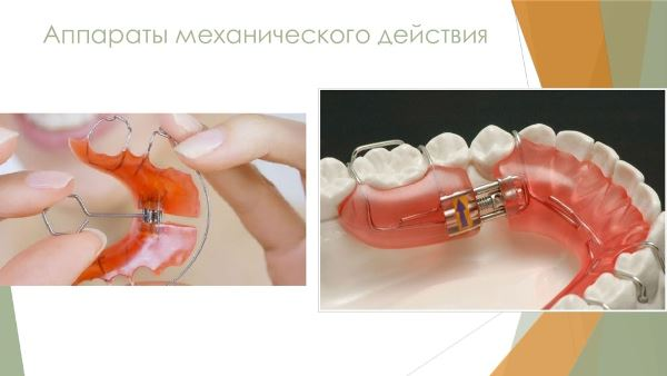 Принцип работы ортодонтических аппаратов механического действия