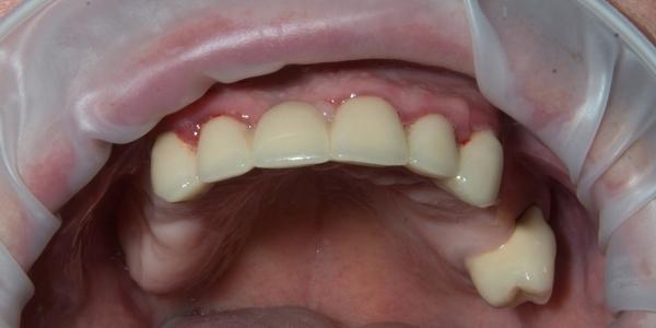 Стоимость лучших протезов на жевательные зубы