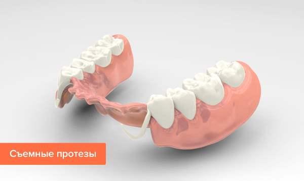 Если нет жевательных зубов какой протез