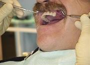 Протез на нижние жевательные зубы