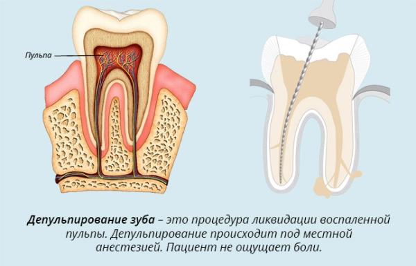 Депульпация зуба перед протезированием это