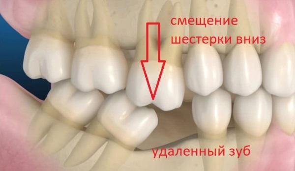 Как избежать развития феномена Попова Годона