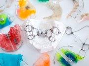Активные ортодонтические аппараты механического действия