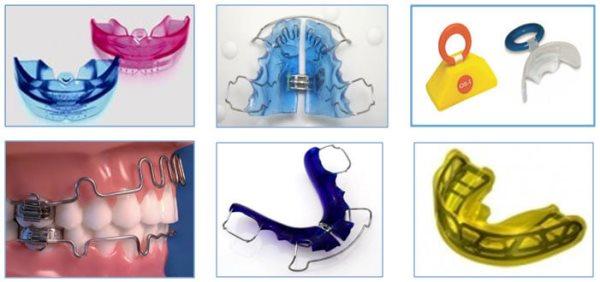 Сроки ношения профилактических ортодонтических аппаратов