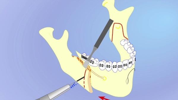 Ретрогнатия нижней челюсти
