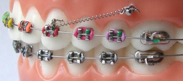 Что такое скелетная опора в ортодонтии