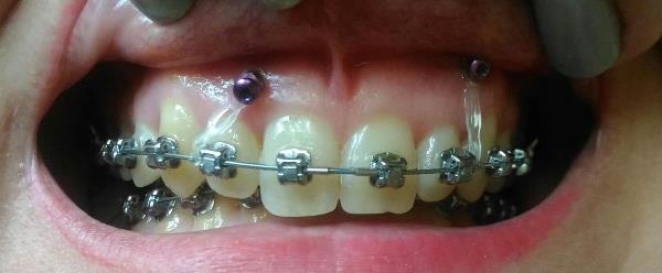 Скелетная опора в ортодонтии скуловой доступ