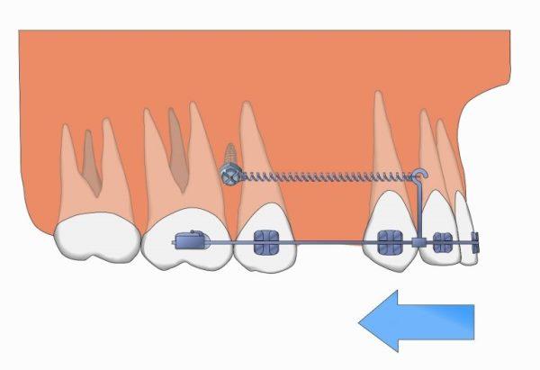 Скелетная опора в ортодонтии что это