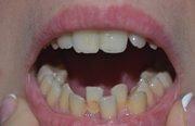 Скученность нижних зубов