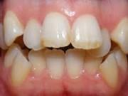 Скученность зубов лечение