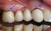 Показания к замене зубных коронок