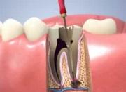 Депульпация зуба перед протезированием цена