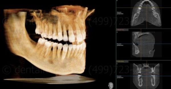Параклинические методы диагностики в ортодонтии
