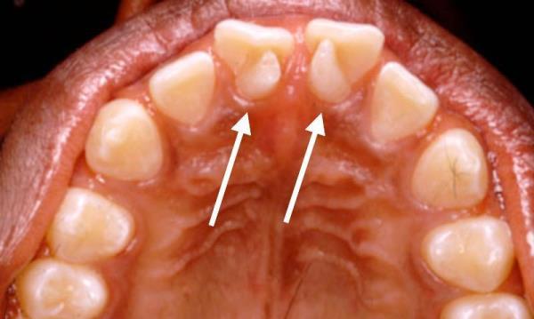 Как выглядит инвагинация зуба