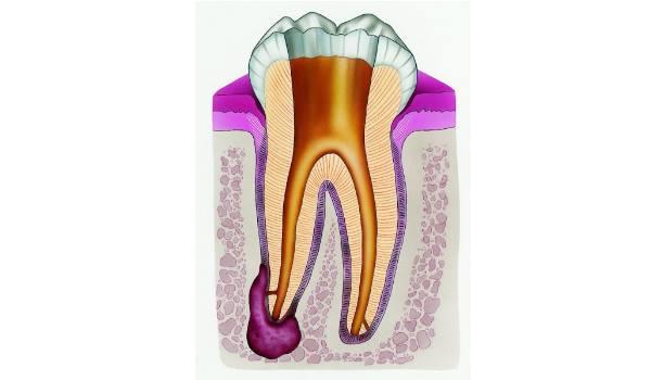 Киста под коронкой зуба лечение