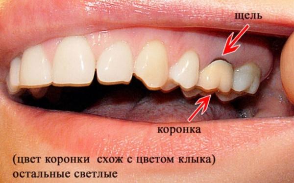Как лечить кисту зуба под коронкой