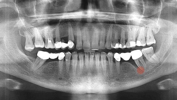 Киста на корне зуба под коронкой