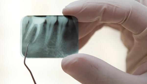 Способы лечения кисты под коронкой зуба