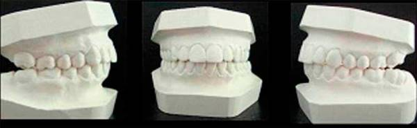 Диагностика зубочелюстных аномалий в ортодонтии