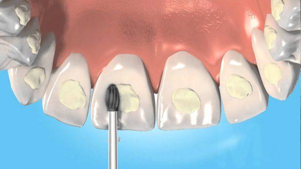 Разновидности ортодонтического адгезива