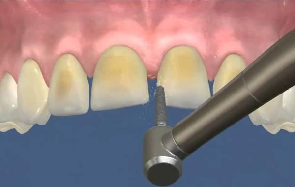 Правила препарирования зуба под винир