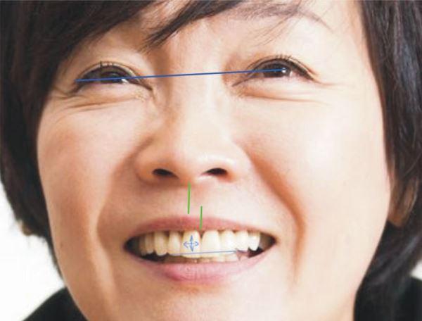 Методы коррекции смещения средней линии зубов