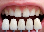 Циркониевые виниры на зубы цена