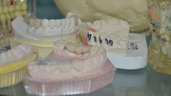 Методы сложного протезирования зубов