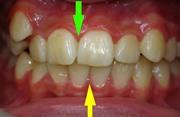 Смещение средней линии зубов лечение
