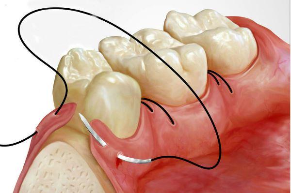 Характеристики стоматологических шовных материалов