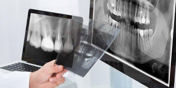 Трепанация зуба искусственной коронки что это