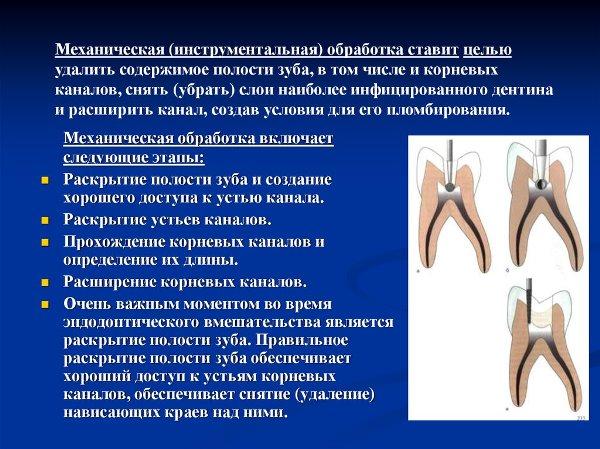 Что значит трепанация полости зуба