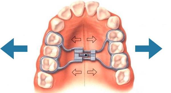 Аппарат норда ортодонтия