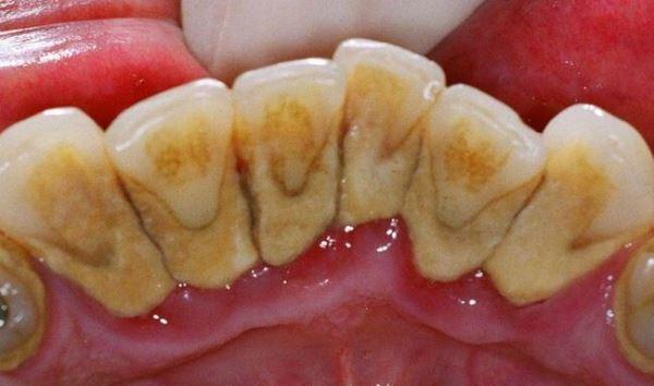 Как убрать зубной налет в домашних условиях
