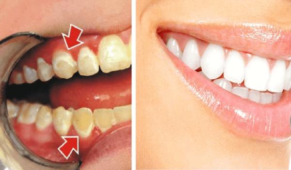 Как убрать зубной налет в стоматологии