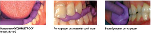 канюли для Окклюфаст в стоматологии цена