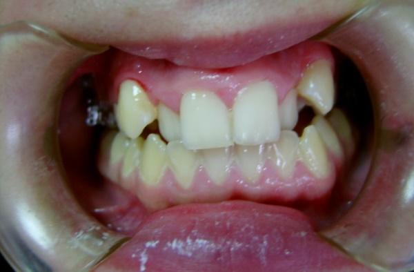 Причины формирования орального положения зубов